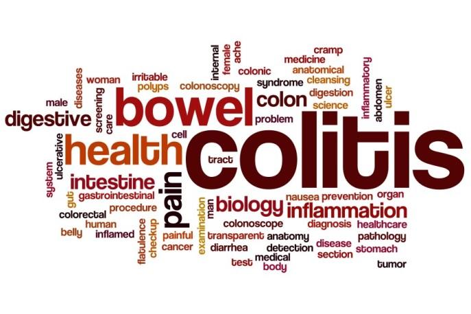 Ulcerative-colitis-900x600